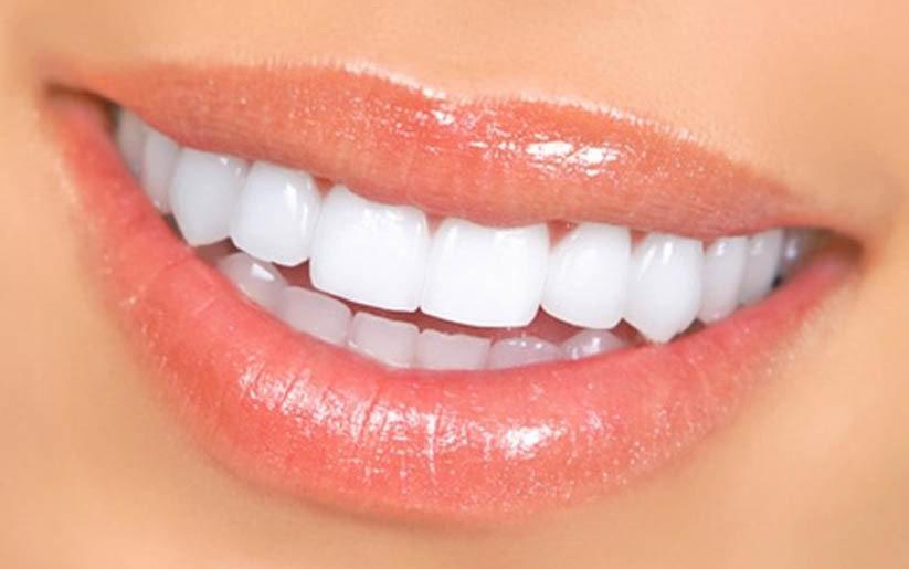 Joli sourire, tous mes secrets