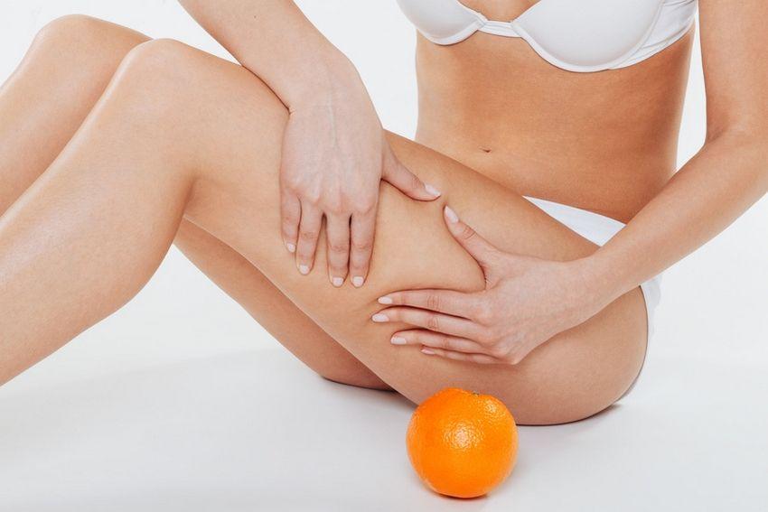 Tout connaître sur la cellulite