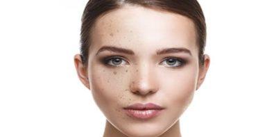 taches brunes sur le visage