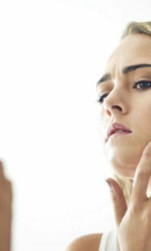 Quel traitement pour l'acné légère ? ?