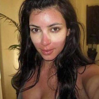 Coup de soleil de Kim Kardashian