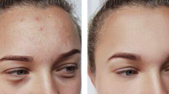 Fond de teint pour acné