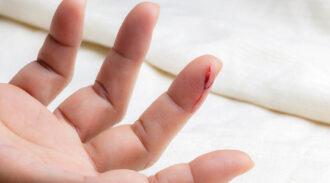 La phobie du sang: comment la surmonter?
