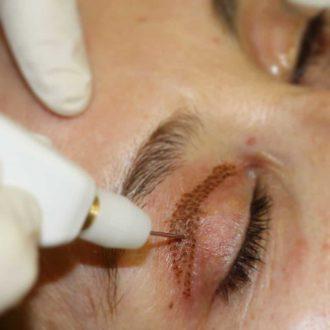 traitement yeux plexr